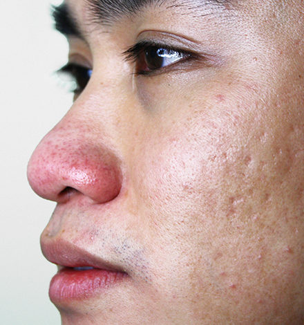 subcision acne scar treatment