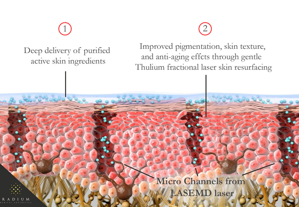 LASEMD Actions on skin