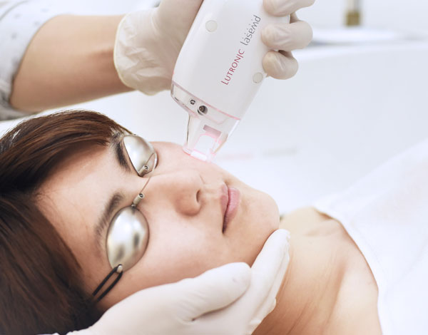 lasemd-skin-perfecting-laser pigmentation treatment