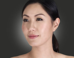 Dewy, luminous skin with a smoother texture can be achieved with Restylane Skinboosters.