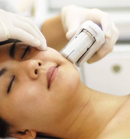 ultherapy facial slimming