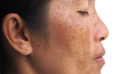 Melasma on woman's face