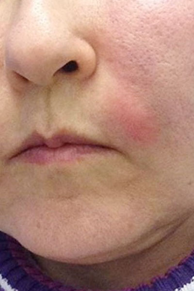 Infection from dermal filler treatment