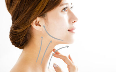 neck lifting treatment botulinum toxin